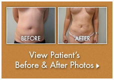 Click here to see before and after pictures of different procedures